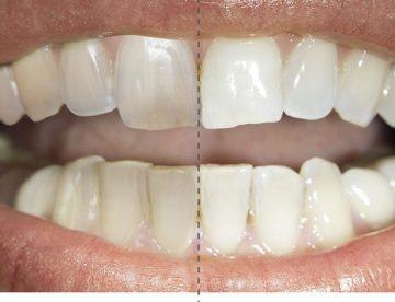 posvetlitev zob